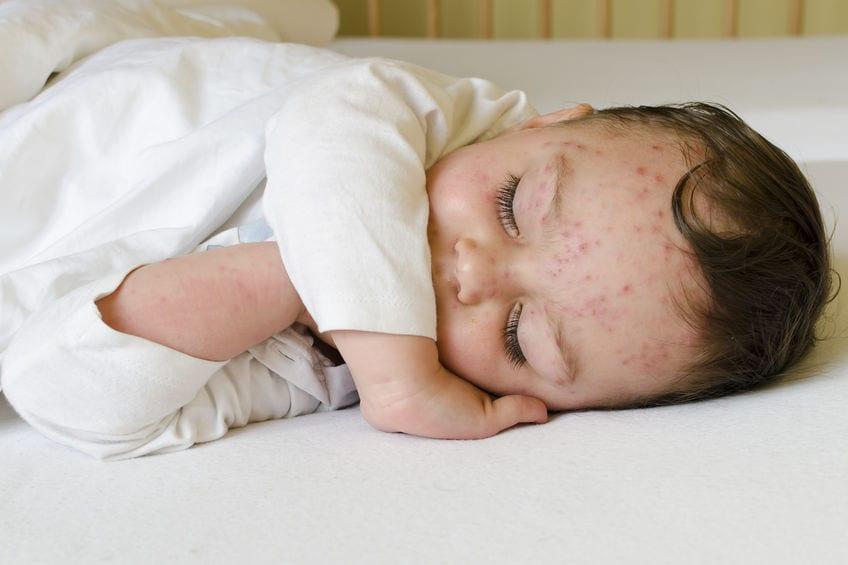 โรคอีสุกอีใสในเด็ก