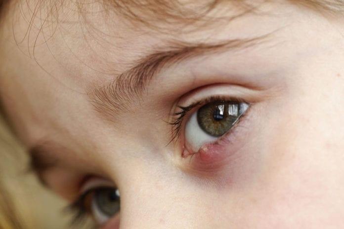 โรคตากุ้งยิงในเด็ก
