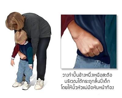 วิธีช่วยเด็กอาการติดคอ