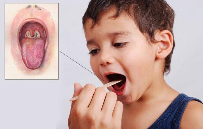 โรคคอตีบ(Diphtheria)