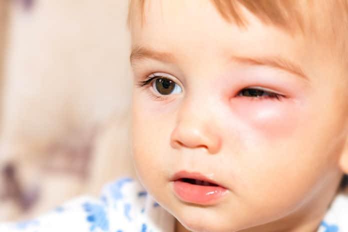 โรคเยื่อบุตาอักเสบในเด็ก