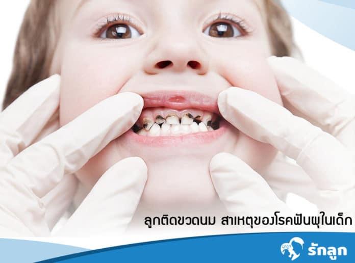 โรคฟันผุในเด็ก