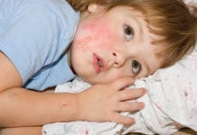 โรคงูสวัดในเด็ก