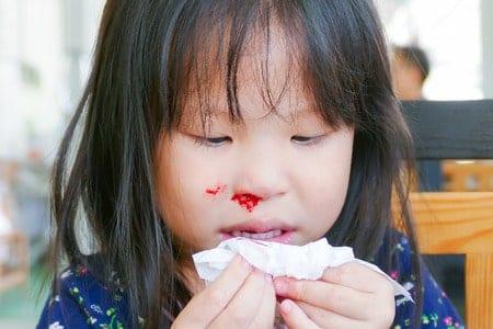 เลือดกำเดาไหลในเด็ก