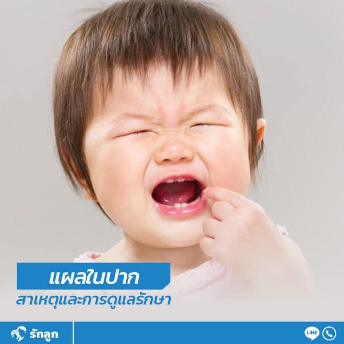 แผลในปาก สาเหตุและการดูแลรักษา