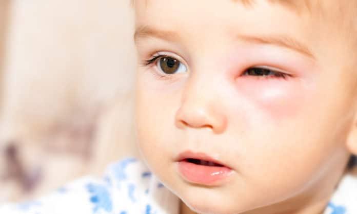 7 สาเหตุของอาการตาบวมในเด็ก