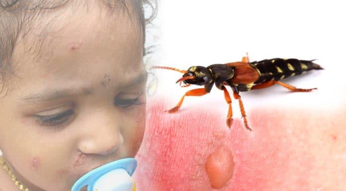 แมลงก้นกระดก