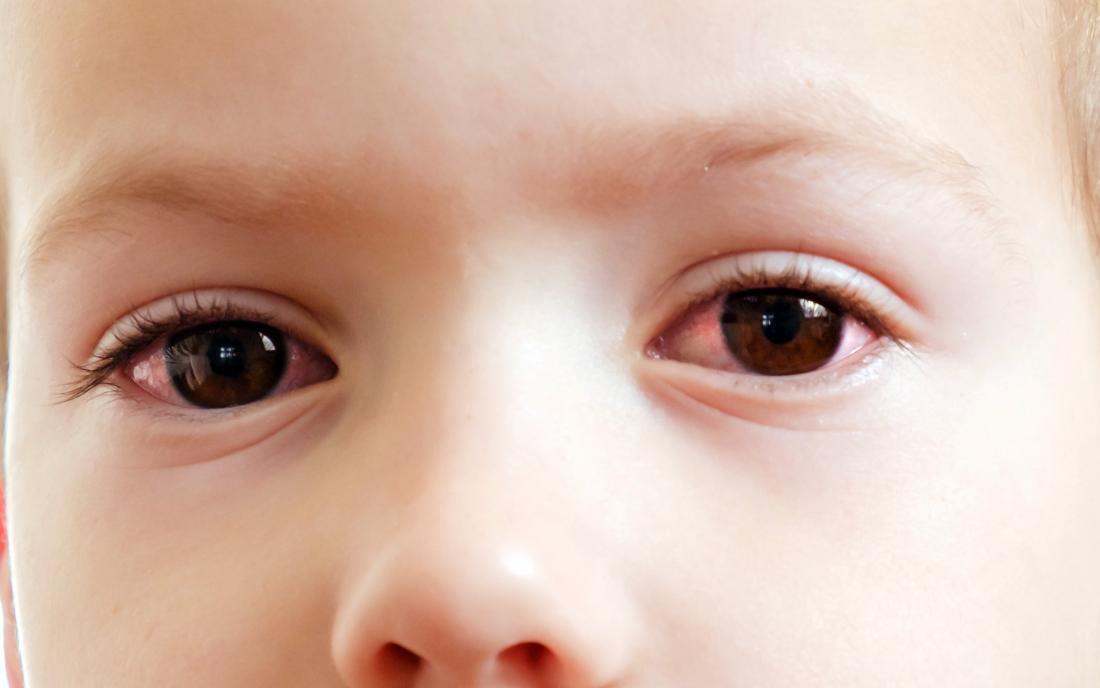 มีอาการคันที่ตา